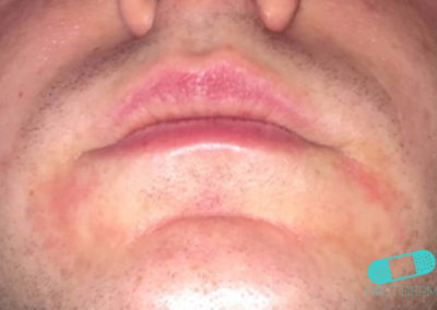 Perioral dermatit (17) läppar [ICD-10 L71.0]
