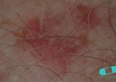Piel Dañada por el Sol (03) piel [ICD-10 L56.8]