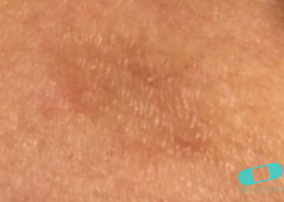 Pitiriasis Rosada (12) piel [ICD-10 L42]