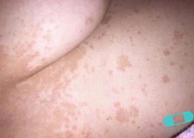 Pitiriasis Versicolor (Tiña Verisicolor) (11) piel [ICD-10 B36.0]