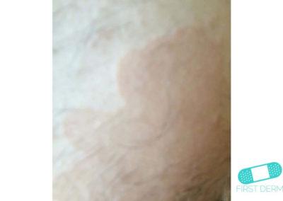 Pitiriasis Versicolor (Tiña Verisicolor) (18) piel [ICD-10 B36.0]