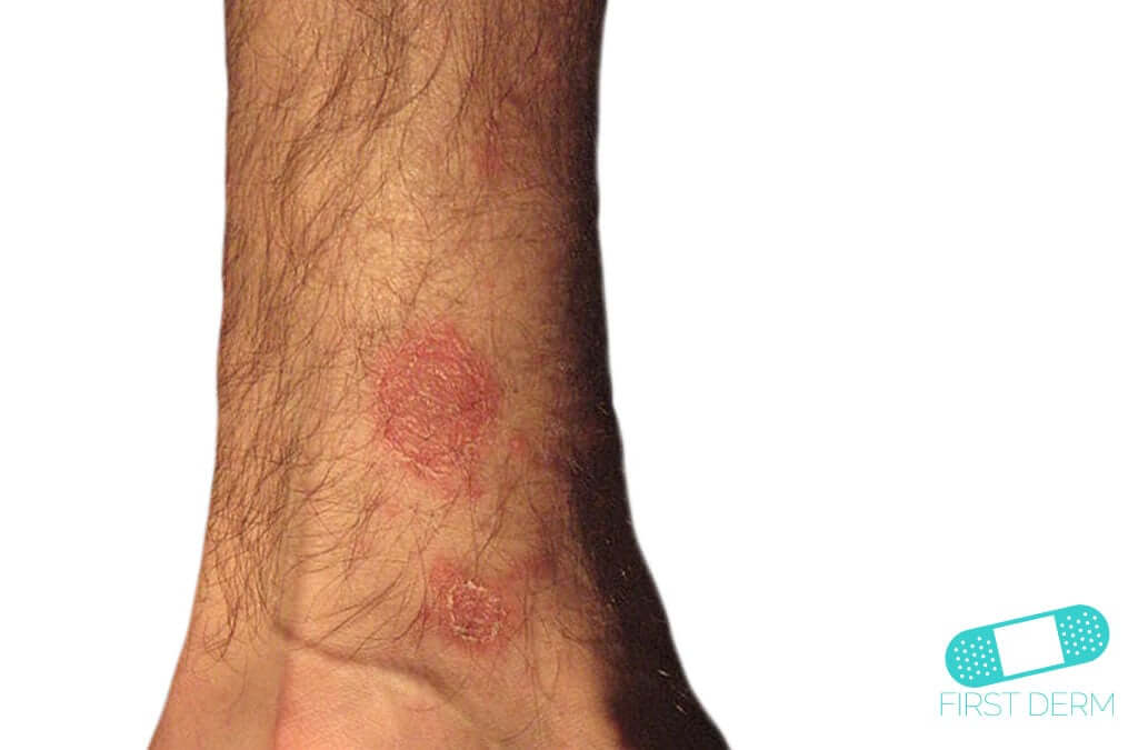 Pityriasis Rosea (01) arm [ICD-10 L42]