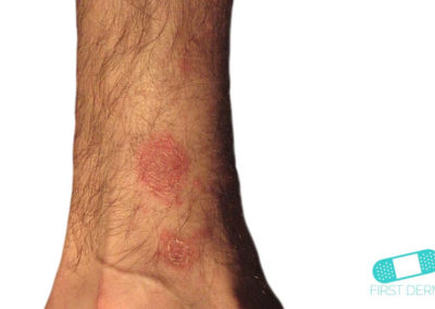Pityriasis rosea (fjällros) (01) arm [ICD-10 L42]