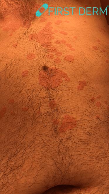 Pityriasis versicolor Skin Image Search AI_1