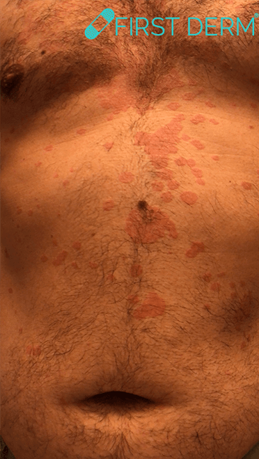 Pityriasis versicolor Skin Image Search AI_2