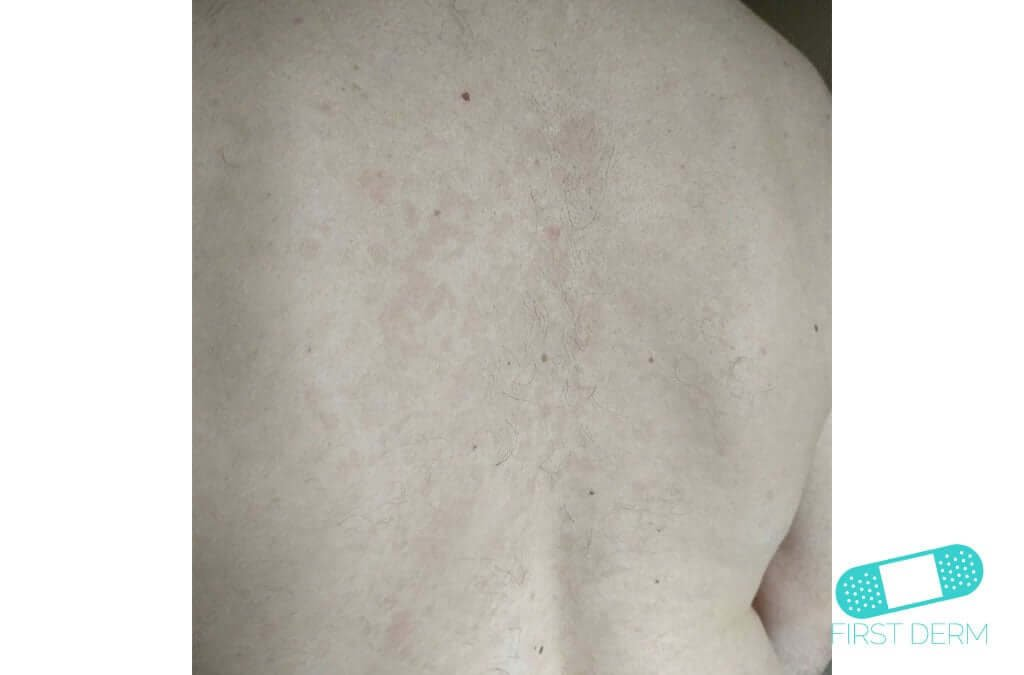 White Spots skin Pityriasis versicolor (tinea verisicolor) (04) back [ICD-10 B36.0]