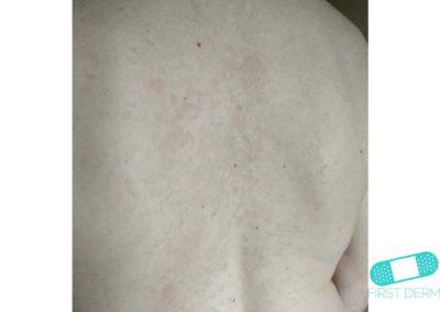 Pityriasis versicolor (tinea verisicolor) (04) rygg [ICD-10 B36.0]