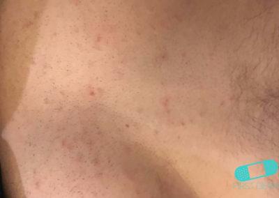 Pityriasis versicolor (tinea verisicolor) (06) bröst [ICD-10 B36.0]