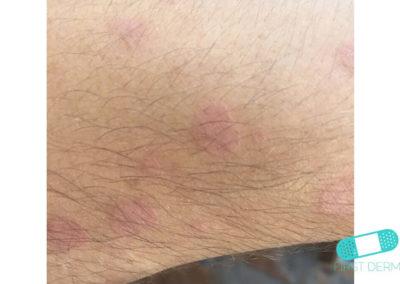 Pityriasis versicolor (tinea verisicolor) (17) hand [ICD-10 B36.0]