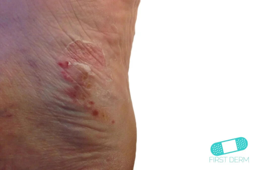 Psoriasis (01) foot [ICD-10 L40.9]