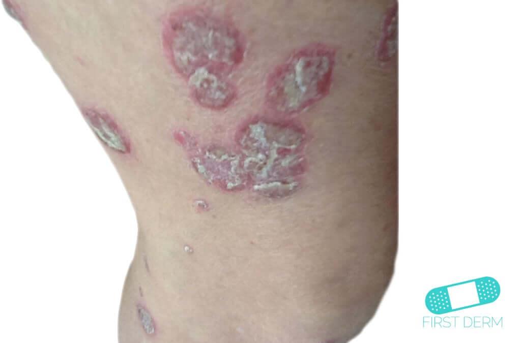 Psoriasis (02) leg [ICD-10 L40.9]
