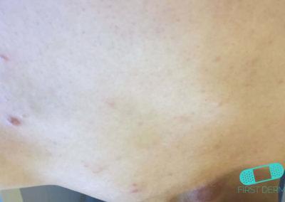 Psoriasis (03) buk [ICD-10 L40.9]