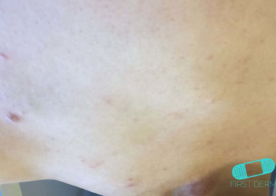 Psoriasis (03) piel [ICD-10 L40.9]