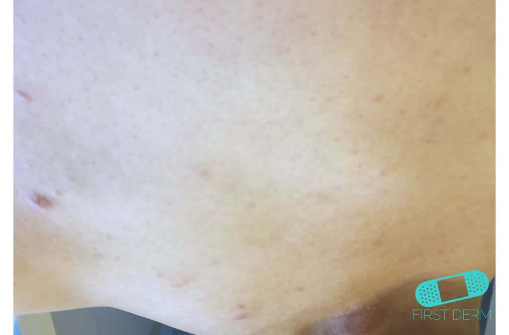 Psoriasis (03) skin [ICD-10 L40.9]
