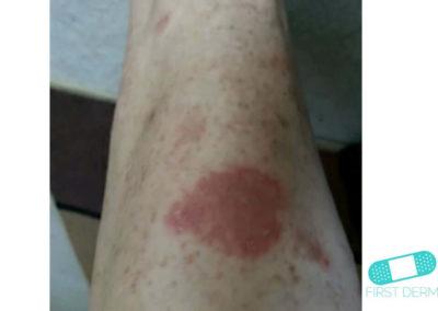 Psoriasis (15) leg [ICD-10 L40.9]
