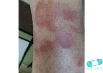 Psoriasis (16) brazo [ICD-10 L40.9]