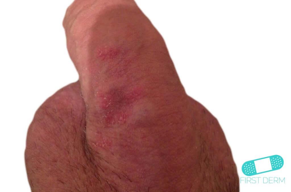 Red penis rash