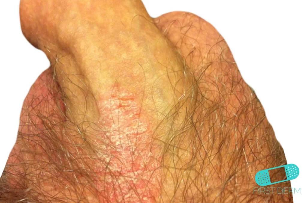 Guía de la piel - Psoriasis Genital