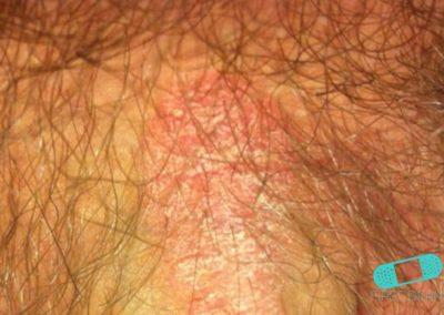 Psoriasis Genital (03) pubis [ICD-10 L40.9]