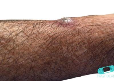 Queratoacantoma (01) brazo [ICD-10 L85.8]