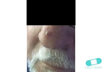 Queratoacantoma (07) nariz [ICD-10 L85.8]