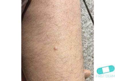 Queratoacantoma (11) pierna [ICD-10 L85.8]