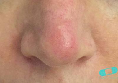 Queratosis Actínica (Queratosis Solar) (03) nariz [ICD-10 L57.0]