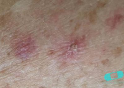 Queratosis Actínica (Queratosis Solar) (05) piel [ICD-10 L57.0]
