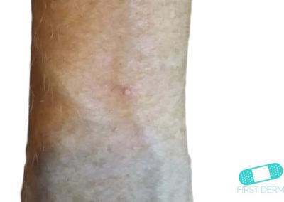 Queratosis Actínica (Queratosis Solar) (11) brazo [ICD-10 L57.0]