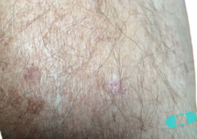 Queratosis Actínica (Queratosis Solar) (19) brazo [ICD-10 L57.0]