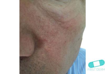 Queratosis Seborreica (Verrugas Seniles) (07) mejilla [ICD-10 L82.1]