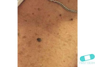 Queratosis Seborreica (Verrugas Seniles) (12) pecho [ICD-10 L82.1]