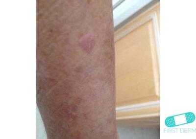 Queratosis Seborreica (Verrugas Seniles) (15) pierna [ICD-10 L82.1]