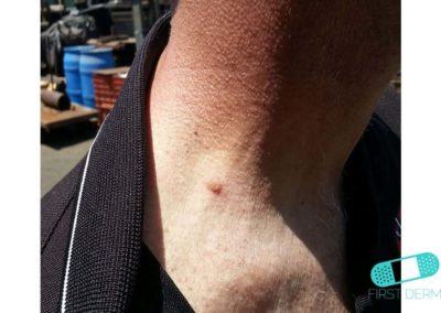 Queratosis Seborreica (Verrugas Seniles) (18) cuello [ICD-10 L82.1]