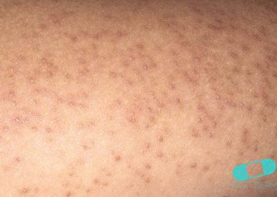 Queratosis pilaris (01) piel [ICD-10 L11.0]