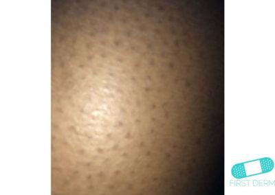 Queratosis pilaris (16) piel [ICD-10 L11.0]