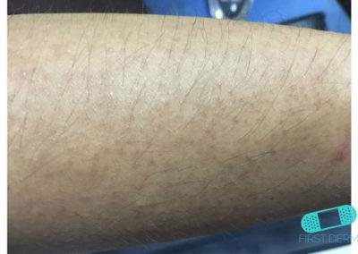 Queratosis pilaris (17) brazo [ICD-10 L11.0]