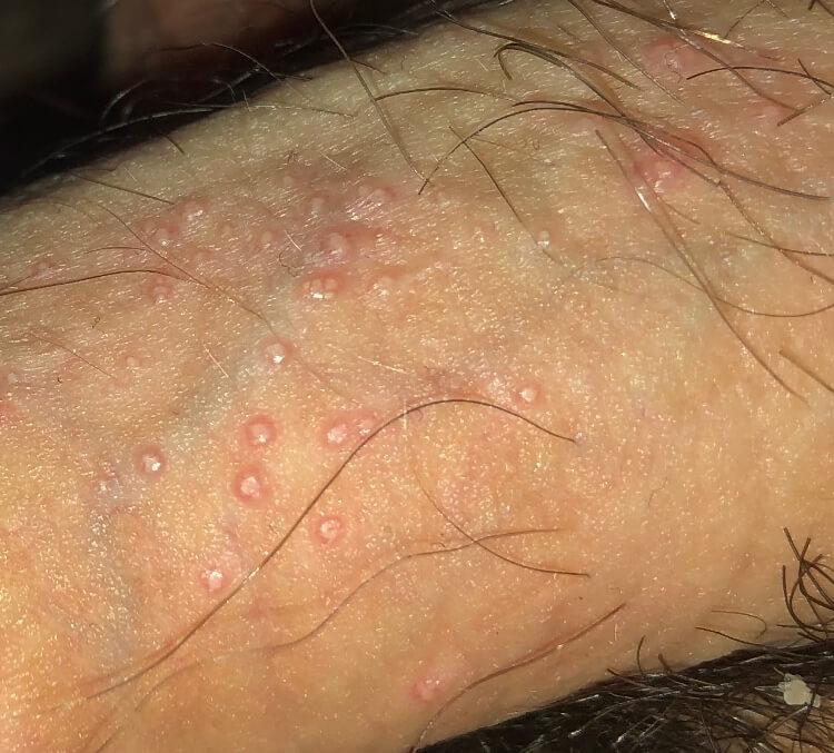 Reddit Skincare Molluscum contagiosum penis help