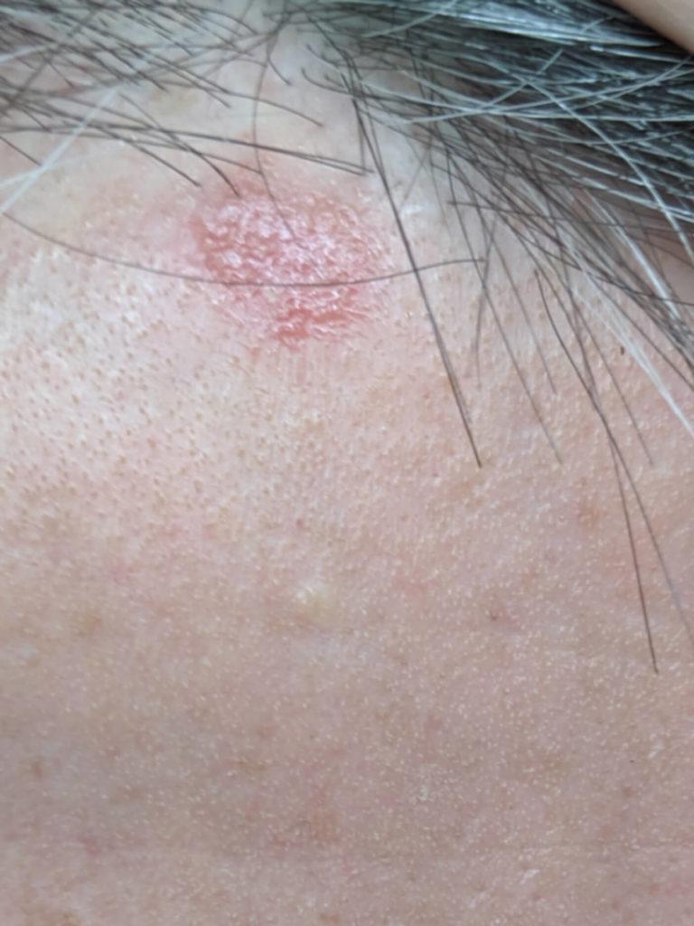 Reddit Skincare ringworm scalp help