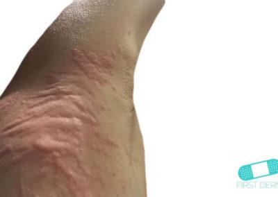 Ronchas (Urticaria) (06) brazo [ICD-10 L50]