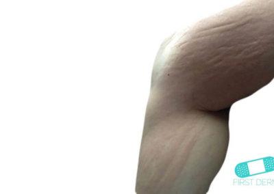 Ronchas (Urticaria) (12) pierna [ICD-10 L50]