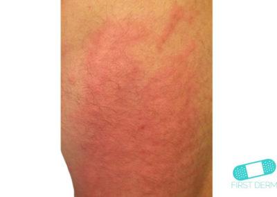 Ronchas (Urticaria) (17) piel [ICD-10 L50]