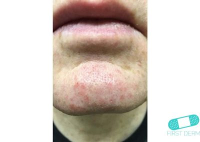 Rosacea (03) chin [ICD-10 L71.9]