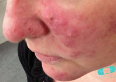Rosacea (05) cheek nose [ICD-10 L71.9]