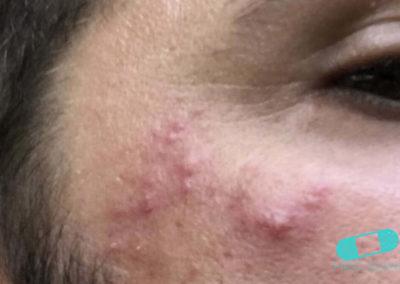 Rosacea (06) left cheek [ICD-10 L71.9]