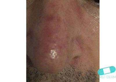 Rosacea (09) näsa [ICD-10 L71.9]