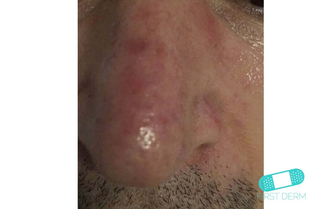 Rosacea (09) nose [ICD-10 L71.9]