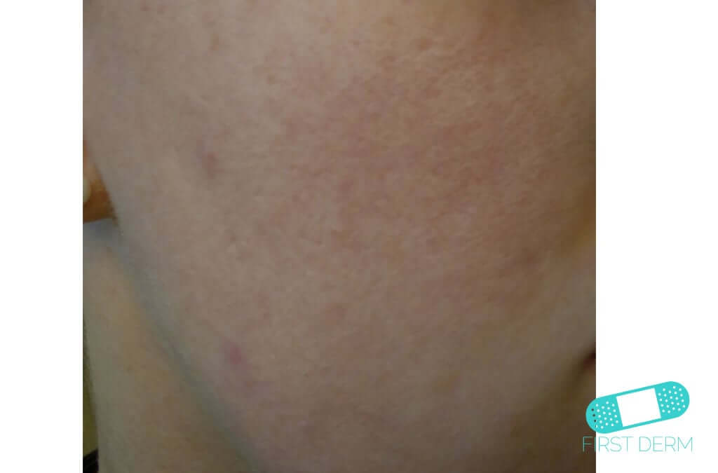 Rosacea (13) cheek [ICD-10 L71.9]