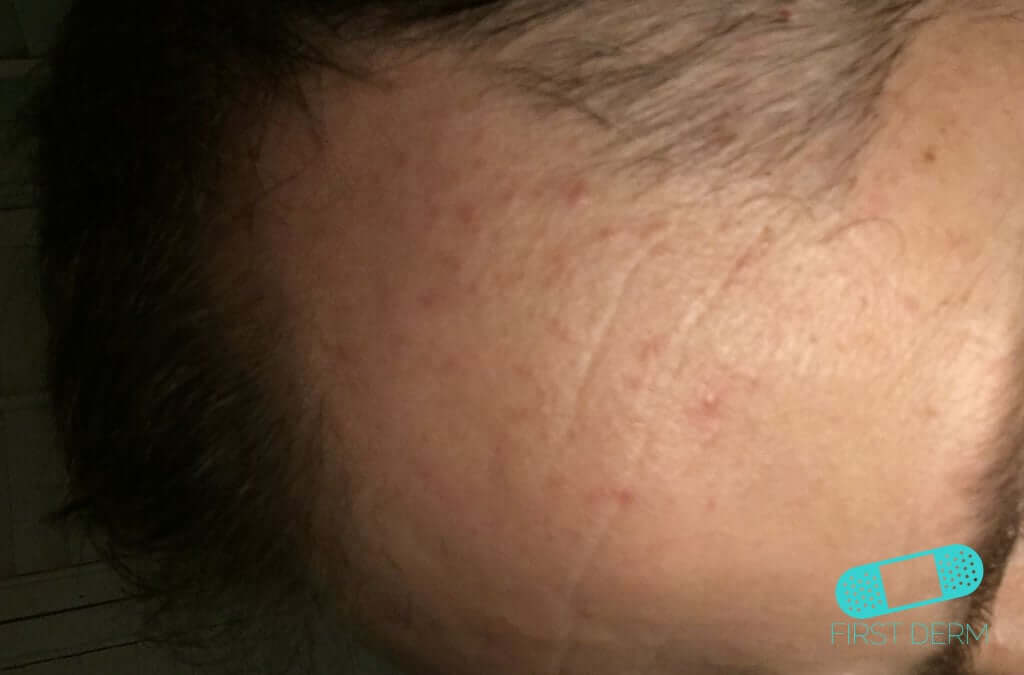 Rosacea (15) forehead [ICD-10 L71.9]