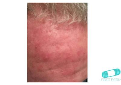Rosacea (16) scalp [ICD-10 L71.9]
